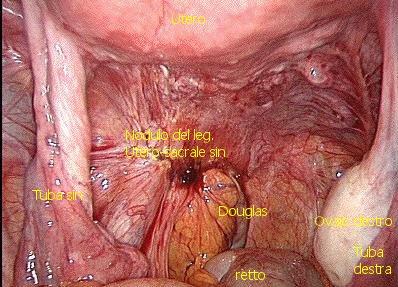 nodulo-del-leg-utero-sacrale-destro-con-legende